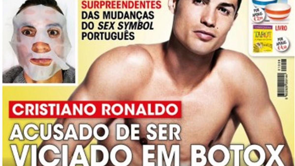 Aseguran que Cristiano es adicto al botox y a la cirug�a
